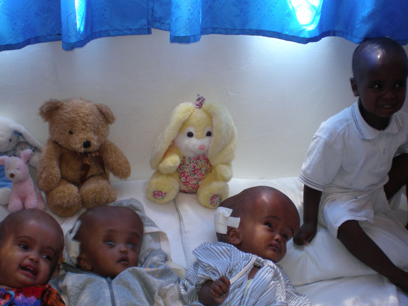 Hydrocephalus patients in Africa