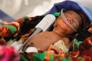 '006' was born 3 months premature, weighing just 600g. She is fighting for her life.