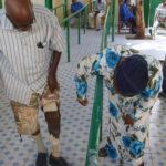 Artificial limbs for war victims